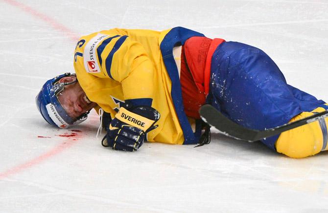 «Лео-Йохана Комарова-Франзена с заслуженным разбитым носом»