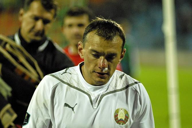 Александру Юревичу соперники разбили лицо, но он все равно продолжил игру