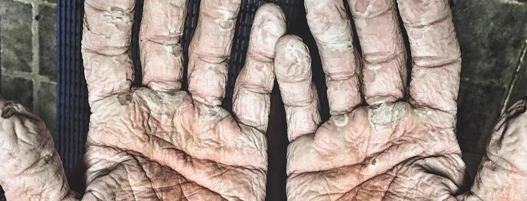 «Холод просочился в кости». Руки олимпийского чемпиона после экспедиции в Арктике